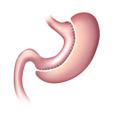 stomach sleeve | Obesity Centre Brussels