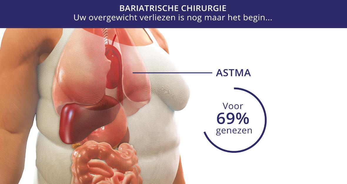 Resultaten van obesitasbehandeling | Obesity Centre Brussels